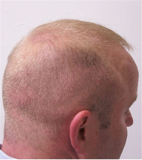 shaved head hair transplant scar pictures shaved head after hair transplant hot girls wallpaper