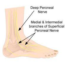 peroneal nerve contusion symptoms treatment