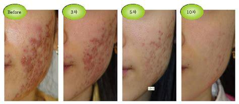 Bioaqua Acne Serum Original skin pigment promotion shop for promotional skin
