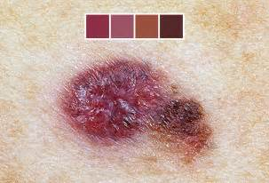mole color skin cancer symptoms pictures of skin cancer and