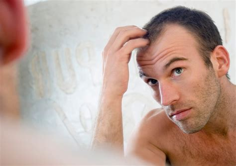 men losing hair three of the most common hair breakage causes hair chatter 187 alopecia