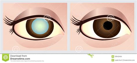 lada occhio occhio della cataratta immagini stock immagine 33642464