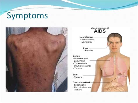 early hiv aids symptoms ehow aids