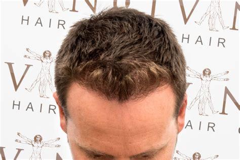 fut hong kong hair transplant hair transplant testimonial daniel koek vinci hair clinic