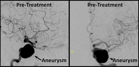 the rapid cure of aneurism by pressure illustrated by the of wilson who was cured of aneurism of the abdominal aorta in the year 1864 classic reprint books brain aneurysm radiology