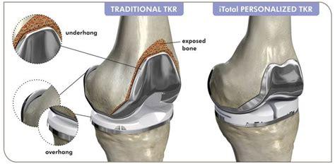 knee replacement diagram conformis implants piedmont orthopaedic complex