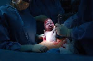 about baby article 6 risk cesarean birth baby tips