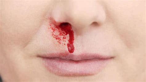 bloody nose what causes bloody nose while sleeping dr lakshmi ponnathpur