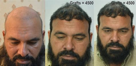 what is the cost of neografting the hair line hair transplant pakistan fue hair transplant clinic