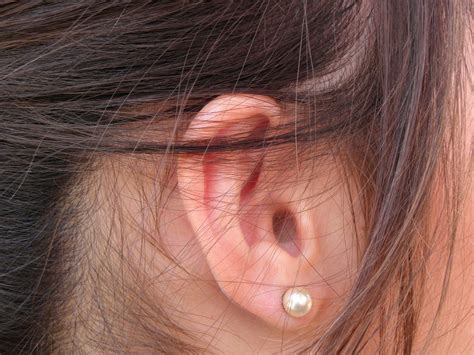tumeur oreille interne zoom sur le neurinome de l acoustique