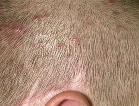 painful vaginal bumps pimple under skin causes hard blind no head swollen