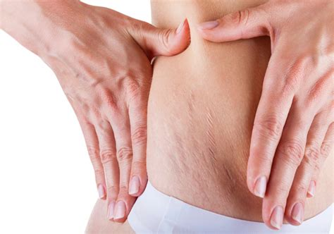how to get rid of saggy skin after c section how to get rid of loose skin after pregnancy beauty tips