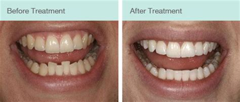 cosmetic braces chester  month smiles cfast