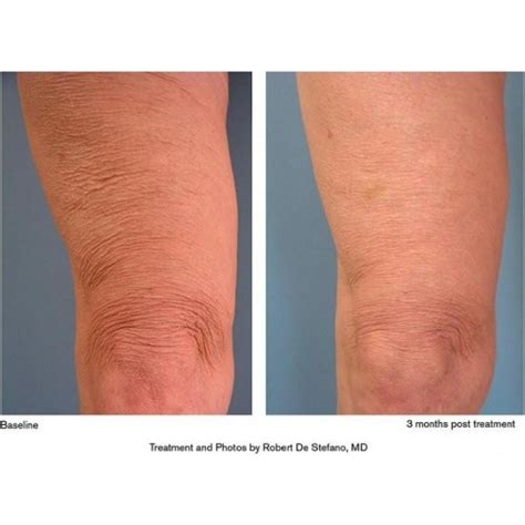 knee lift surgery before and after md cosmedical solutions sydney thermage cpt knees non