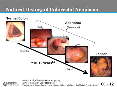 Positive Stool Test Colon Cancer proposed decision memo for screening for colorectal cancer
