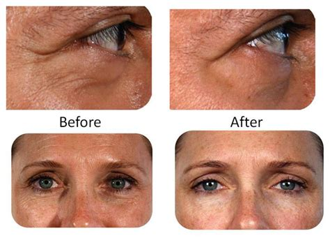 review get professional anti aging results at home with