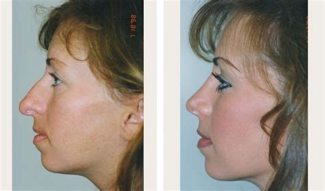 photo gallery before and after cosmetic surgeon in the rhinoplasty before and after nose job before and after