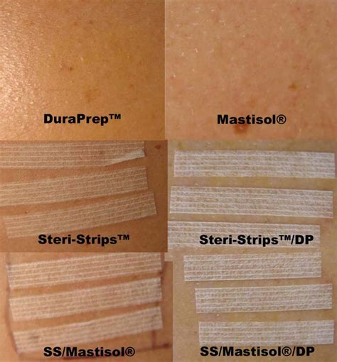 how to remove steri strips after c section image gallery steri strips removal