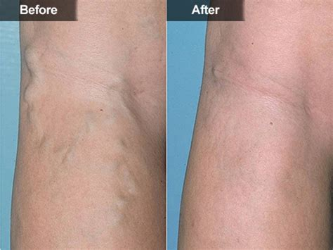 spider veins on the legs treatments leg vein treatment sclerotherapy mclean woodbridge va