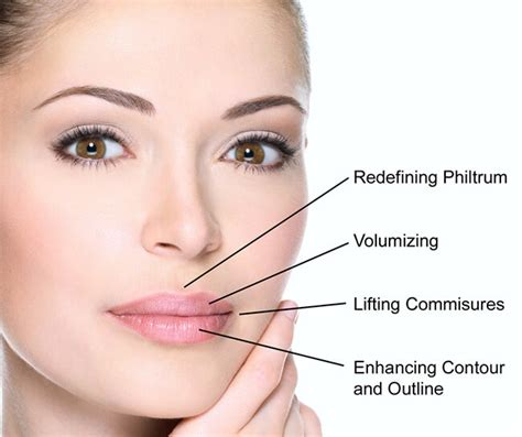 lip injections in adelaide medicine of cosmetics