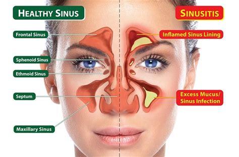 Sinus Detox by Neti Pot Recipe For Sinus Cleansing Sho S Detox