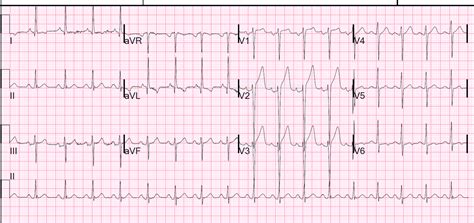 lvh pattern dr smith s ecg blog hyperacute t waves anterior stemi