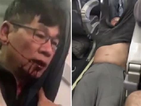 Dr David Dao Criminal Record United Airlines David Dao Argued With In New