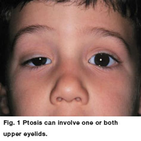 Mcgowans Droopy Eye Problem by Ptosis Aapos