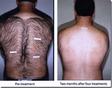 mens hair womens pubic hair laser hair removal clinics