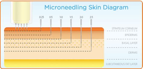 tattoo needle penetration collagen induction therapy or micro needling