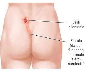 perdita di sangue dal sedere cisti pilonidale descrizione evoluzioni e sintomi