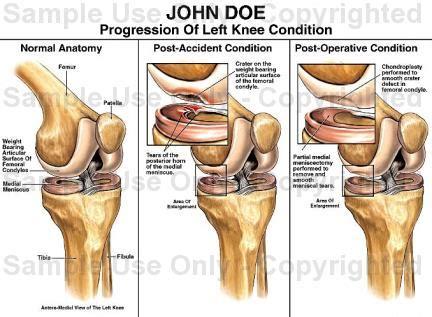diagram of left knee knee joint diagram left sevstar