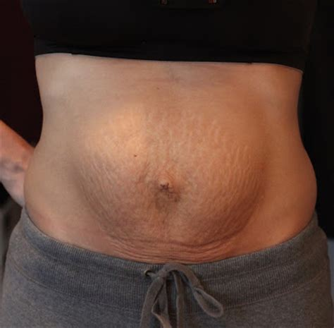abdominal swelling after c section tummy binder after c section abdominal binder for weight