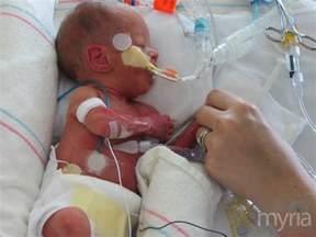Halloween Pumpkin Desserts - premature babies exposed to unsafe chemicals in nicu myria