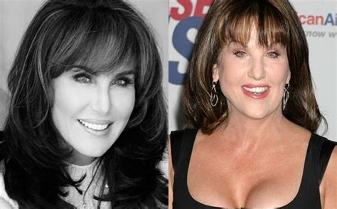 has anyone seen robin mcgraw dr phils wife recently robin mcgraw in denial of having plastic surgery but why