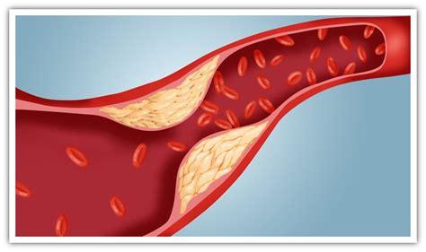 alimenti con fitosteroli fitosteroli nostri alleati contro il colesterolo edo