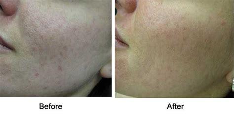 red light scar treatment lakewood laser laser light based therapies botox