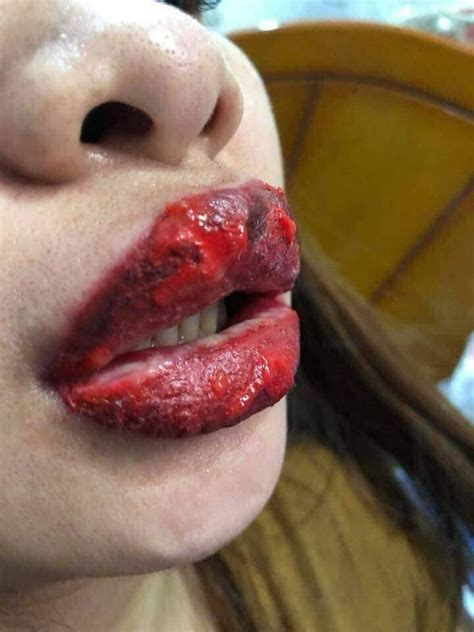 tattoo infection video fake woman lips become swollen from an infection after using