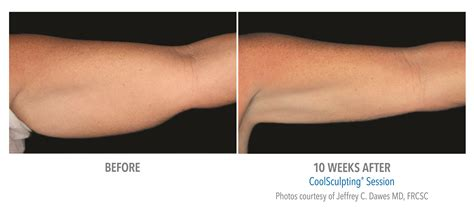 at home coolsculpting 28 images coolsculpting before