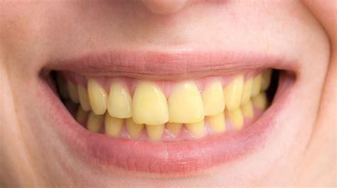 yellow teeth adelaide dental