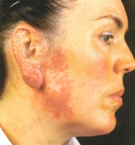 Lupus vulgaris, also known as Tuberculosis luposa, are ... Lupus Vulgaris Face