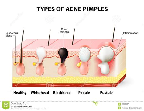 acne diagram acne pimples stock vector illustration of anatomy cell