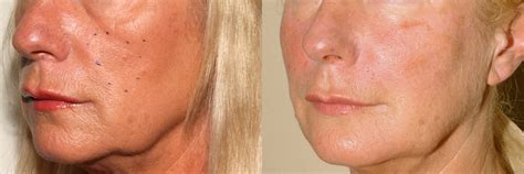 pics of buccal hollow filler tear trough before and after book covers