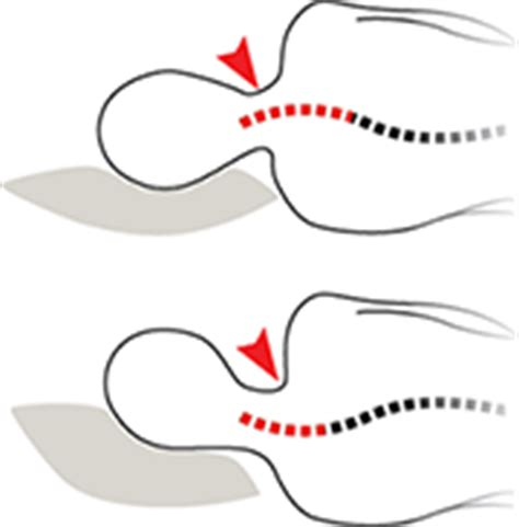Side Sleeper Position by How To Choose The Best Side Sleeper Pillow