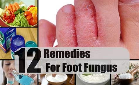 12 home remedies for foot fungus treatments