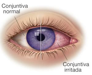imagenes ojos con conjuntivitis conjuntivitis en verano vistal 225 ser oftalmolog 237 a