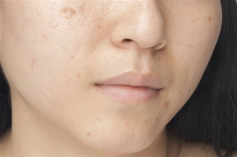 Acnes Spot Whitening Mask For Acne Scars Mario Badescu Skin Care