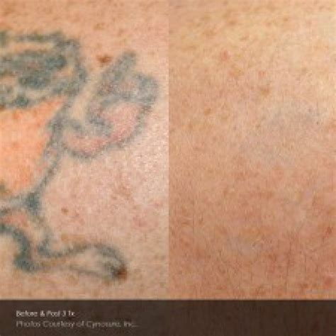 tattoo removals melbourne laser removal affordable removal melbourne