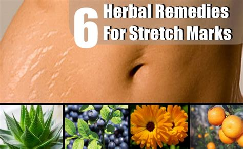 6 effective herbal remedies for stretch marks best herbs