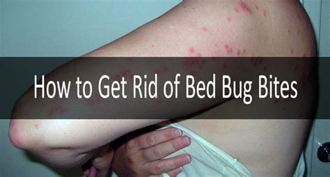 bed bug bites  definite symptoms signs treatment strategy